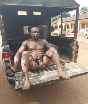 Photo of Son stabs mother, sets himself ablaze