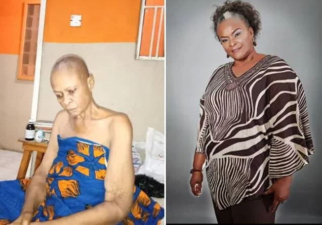 Photo of Photo: Another Nollywood actress down with cancer, begs for funds