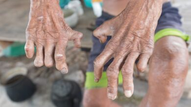 Photo of Overcoming leprosy more than early diagnosis, prompt treatment – WHO